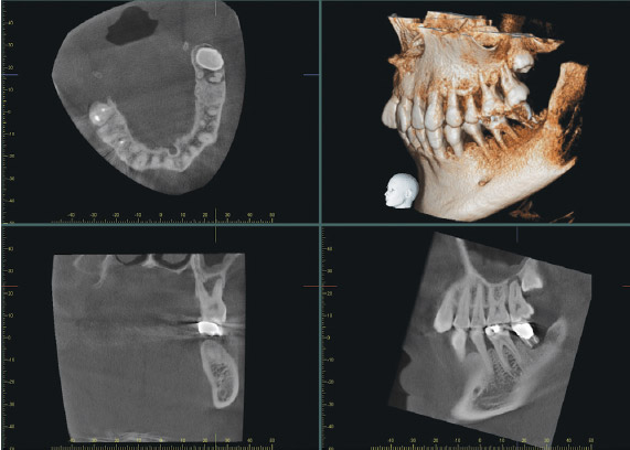 oral_surgery_xyz.jpg